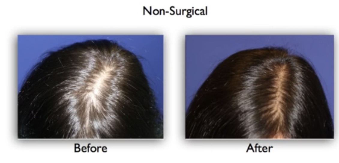 hair loss stem cell therapy