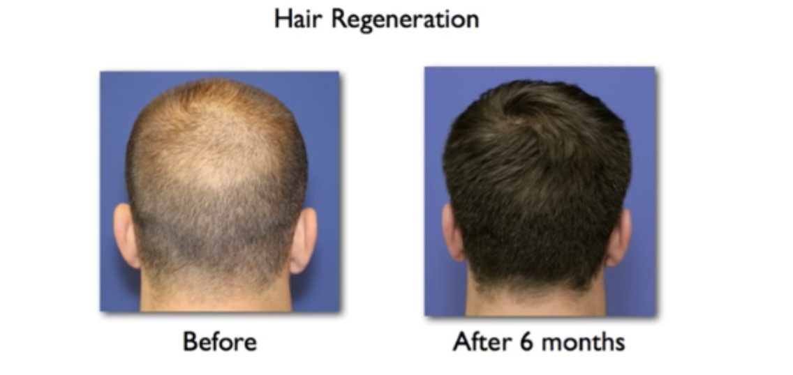 hair stem cell therapy