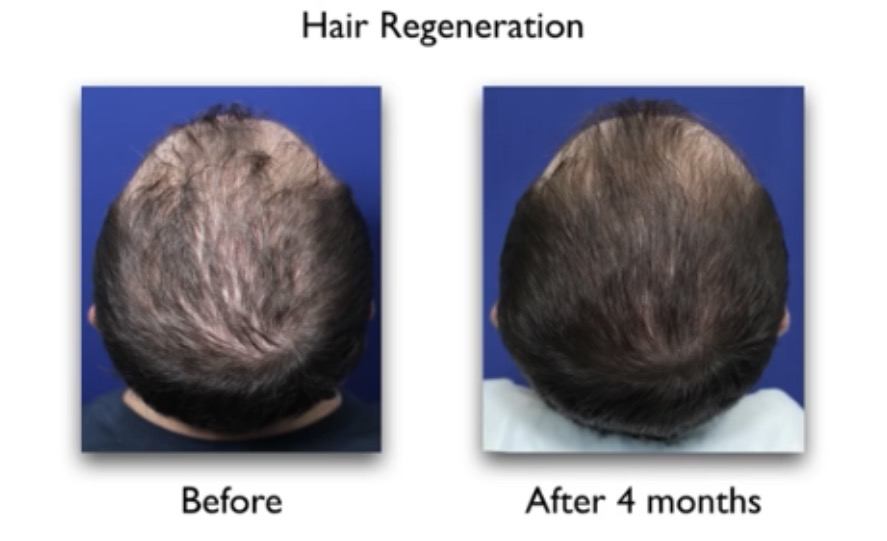 stem cell therapy hair loss